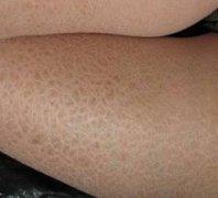 鱼鳞病的病因到底是什么